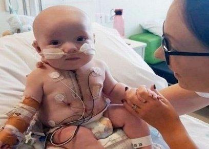 طفل يتحدى الأطباء ويعيش بنصف قلب بعد ولادته