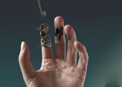 أصابع مصابة بمرض بورغر