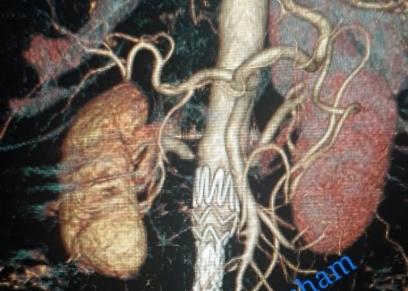 دراسة أمريكية: اللحوم والكعك يزيدون من جلطات القلب