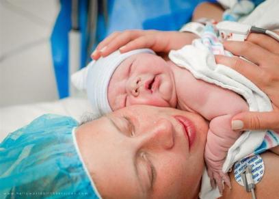 الولادة القيصرية