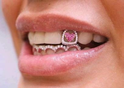 خواتم الأسنان