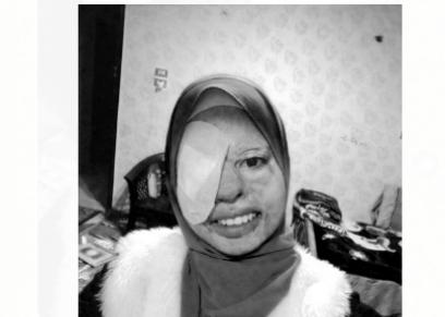 ندى الألفى تبحث عن متبرع لعلاج عينيها