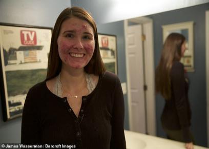 بالصور| تصالحت مع المرض.. فتاة أمريكية تتحدي