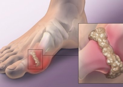 قدم مصابة بالنقرس