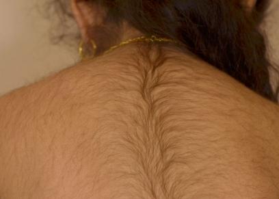 شعر المرأة الزائد