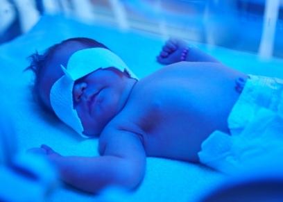 علاج الصفراء عند حديثي الولادة
