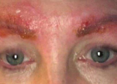 صورة المرأة المصابة