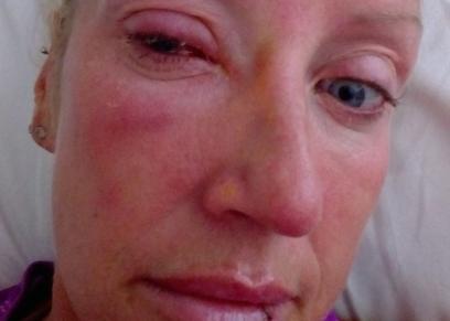 سيدة تصيب بالعمى بعد ارتدائها عدسات لا صقة تحتوى على حشرات دقيقة