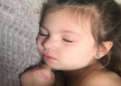 الطفلة أميليا ميلنر
