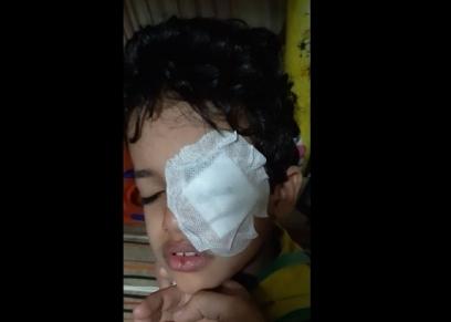 طالب يتعرض لقطع في قرنية العين