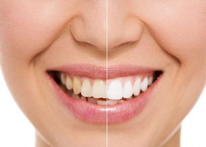العلاقة بين فيروس كورونا وقلة غسل الاسنان