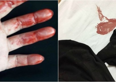 اعتداء زوج على زوجته