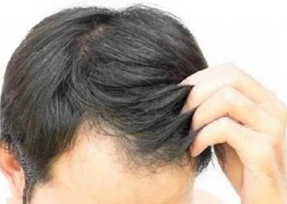 صبغة الشعر للرجال
