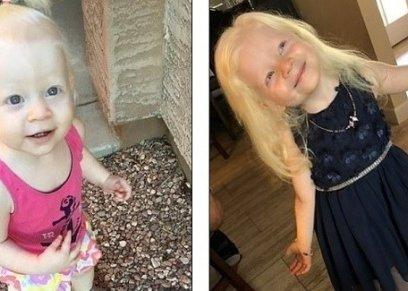 طفلة تتحول إلى أميرة من أميرات ديزني لاصابتها بمرض نادر