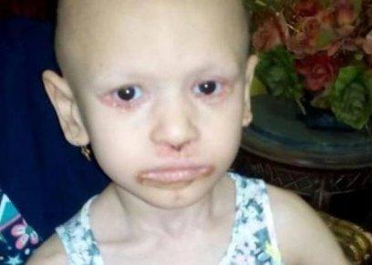 طفلة 4 سنوات تعاني من مرض جلدي نادر يؤدي إلى تساقط جلدها
