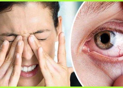 أسباب جفاف العين