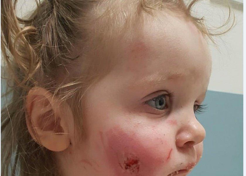 رضيعة تتعرض للهجوم داخل أحد مراكز الأطفال