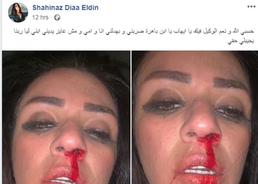 زوج شاهيناز ضياء ينفي اتهاماتها له بالضرب: