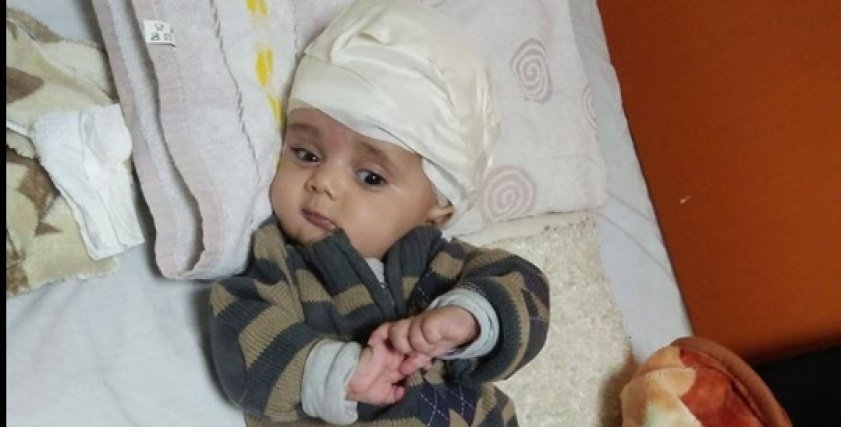 طفل يصاب بالعمى نتيجة ميكروب في الدم
