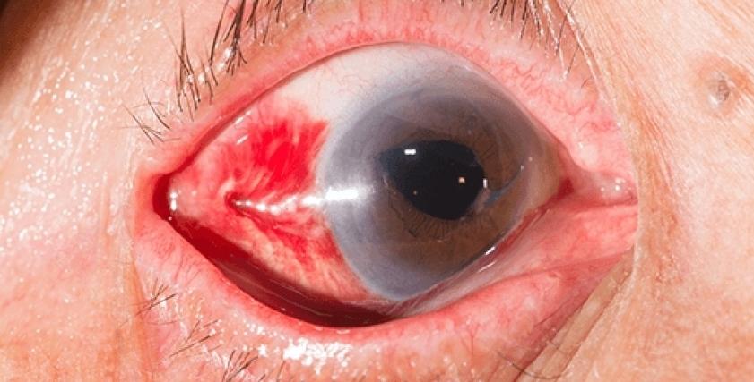 أعراض جلطة العين وطرق العلاج