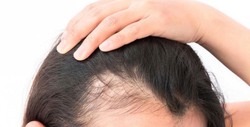 سقوط الشعر بسبب كورونا
