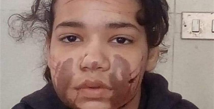 الطفلة آية ضحية تعذيب والدها