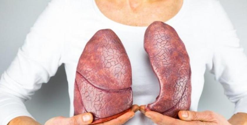 ارتفاع نسبة الشفاء من سرطان الثدي في المرحلة الثانية..تعرف على أسباب