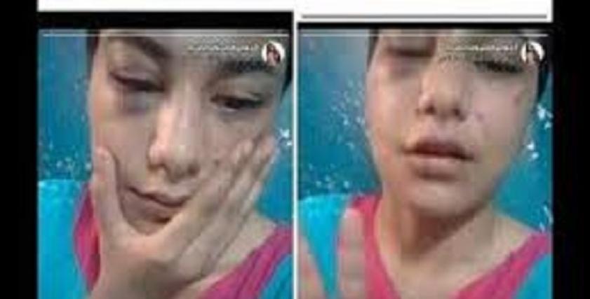 """""""منة عبد العزيز"""