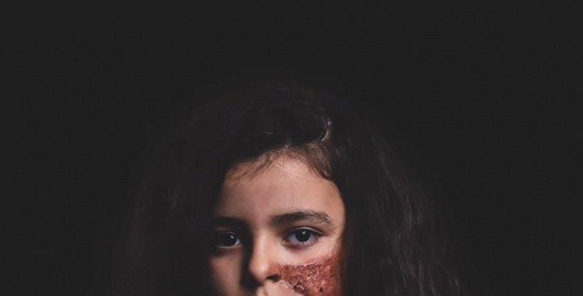 بالمكياج والدم الصناعي.. كواليس جلسة تصوير تجسد حروق الأطفال..