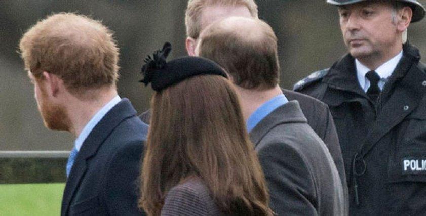 الأمير هاري يخضع لعملية تجميل تلبية لرغبة خطيبته
