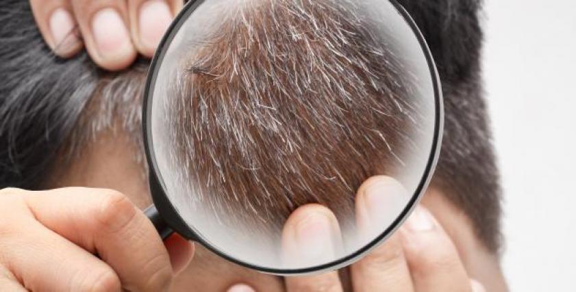 أسباب شيب الشعر المبكر عند الرجال