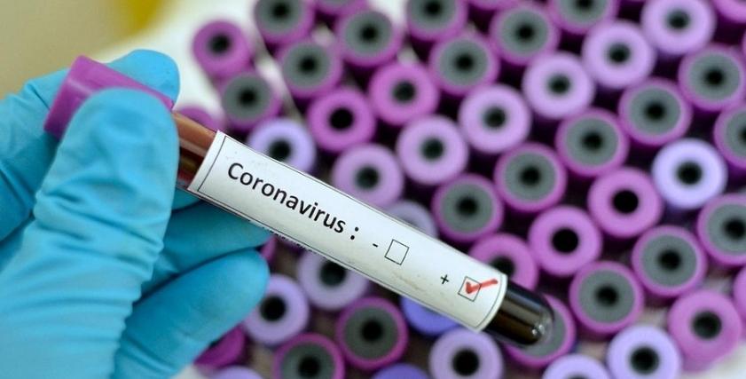 علاج فقدان الوزن الناتج عن الإصابة بفيروس كورونا