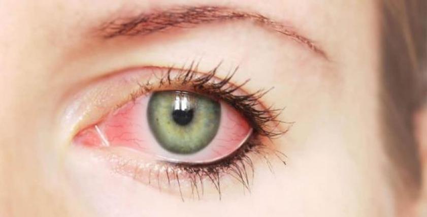 التهاب القزحية قد يعرضك لفقدان البصر