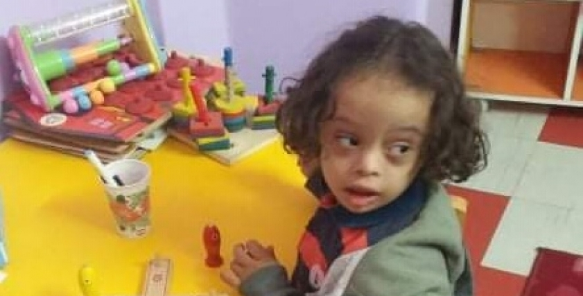 قصي الطفل المصاب بمتلازمة داون