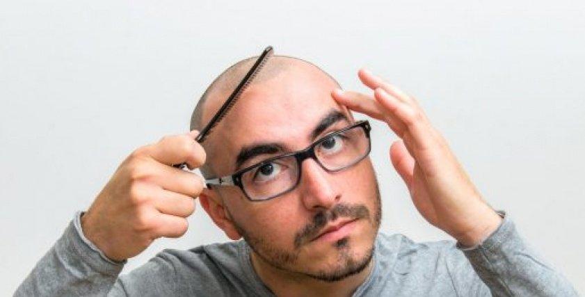 علاج الصلع عند الرجال