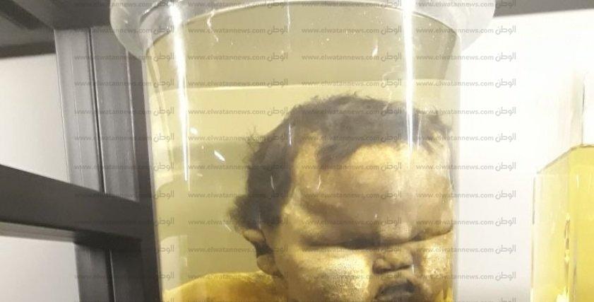 بالصور| افتتاح متحف نجيب محفوظ لأمراض النساء والتوليد