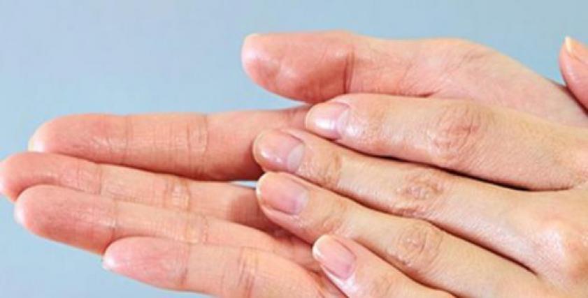 غسل اليدين بالصابون قد يصيبها بالجفاف