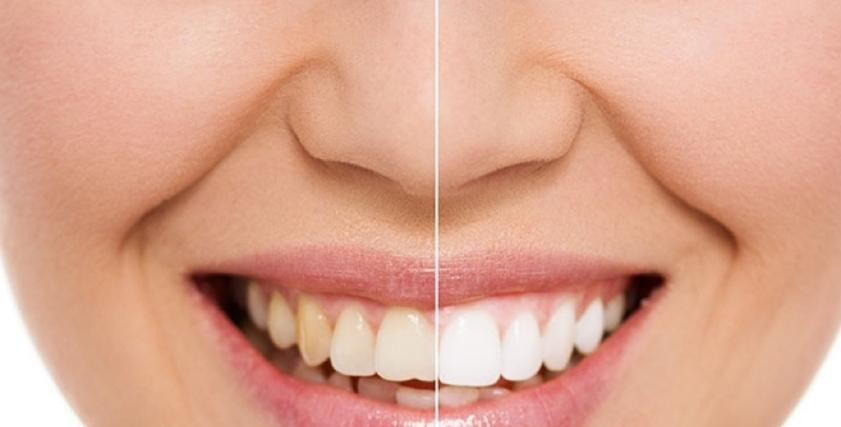 كيفية التخلص من اصفرار الاسنان بالطرق الطبيعية