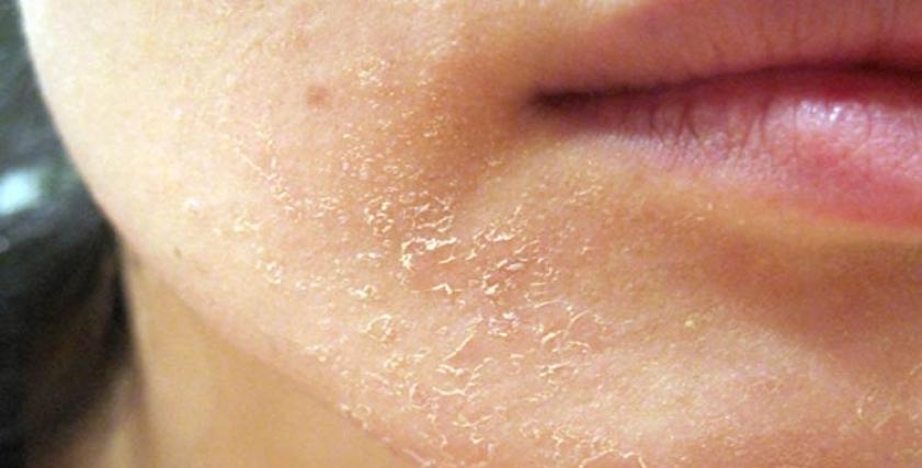 نصائح لحماية الجلد من الجفاف